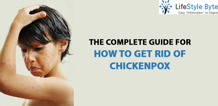 the complete guide for how to get rid of chickenpox