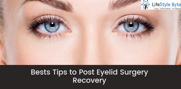 bests tips to post eyelid surgery recovery