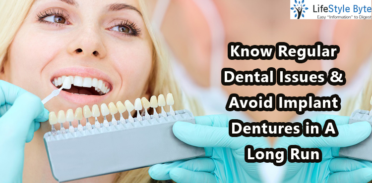 know regular dental issues & avoid implant dentures in a long run